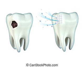Teeth cavity - Tooth cavity and tooth remineralization. ...