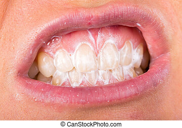 Teeth cleaning - Close up photo of teeth cleaning with...