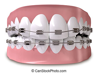 A closed set of human teeth with metal braces fitted set in gums on an isolated background