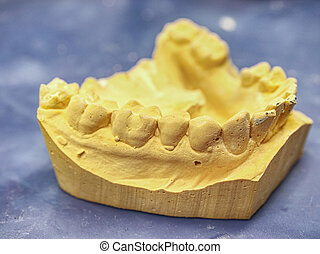 Teeth gypsum model. Dental care concept.