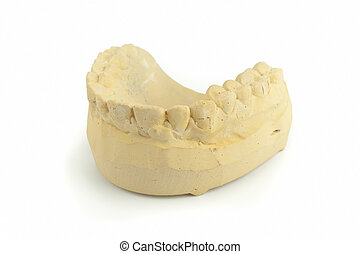 Teeth gypsum model