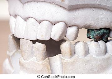 Teeth made ??of plaster