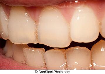 teeth of asian girl