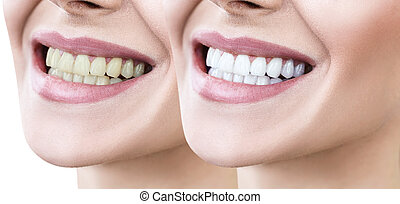Teeth of young woman before and after whitening over white background.