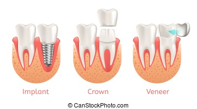 Teeth Procedure Implant Veneer Crown Restoration