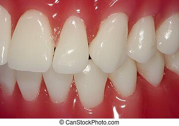 Teeth - Photo of Teeth