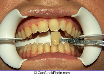 Teeth - Dental patient about to undergo tooth whitening...