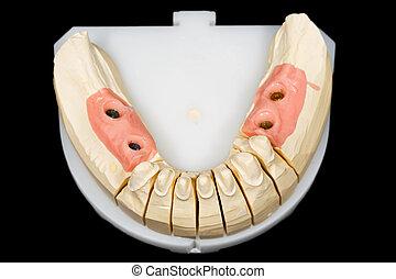 Teeth stump and implants
