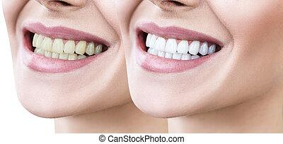 teeth, van, jonge vrouw , vóór en na, whitening.
