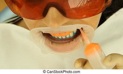 Teeth Whitening. Application of whitening gel on your teeth....