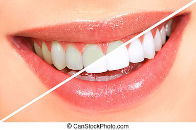 Teeth whitening - Beautiful young woman teeth. Whitenning