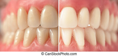 Teeth whitening, before and after shots