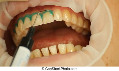 Teeth Whitening. Insulation gel soft tissue. stomatology