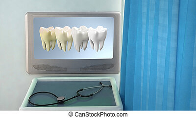 Teeth Whitening medical room closeup