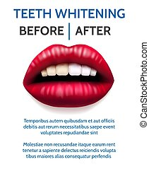 Teeth whitening poster. Female open mouth with yellow teeth...