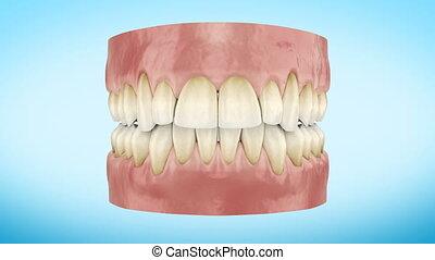Teeth Whitening Procedure Close Up 3d Animation. Full HD...