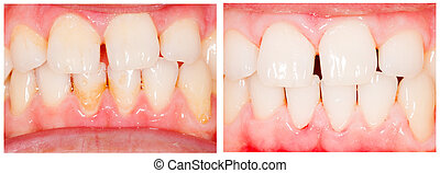 Teeth whitening - Teeth before and after tooth whitening...