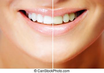 teeth, whitening, vóór en na, vergelijking