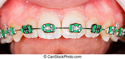 Teeth with braces - Close up photo of teeth with orthodontic...