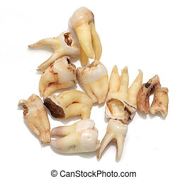 teeth with caries on a white background. macro