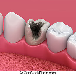 Teeth with caries, treatment. Medically accurate tooth 3D illustration
