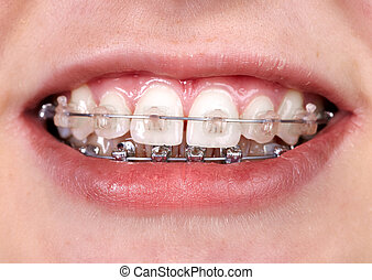 Teeth with orthodontic brackets. Dental health care.