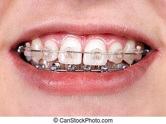 Teeth with orthodontic brackets. Dental health care.