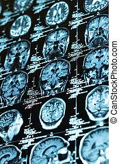 tegel, hersenen, ct, menselijk, scanderen
