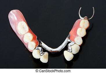 teil, a, scheletal, prothese, dass, ersetzt, fehlende zähne, durch, besondere, festklemmen, systeme, und, ihm, buechse, sein, entfernt, per, der, pacient, -, teil, a, series.