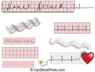 tele, oldal, elektrokardiogramm, leszed, noha, szív, att