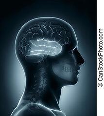 Temporal lobe medical x-ray scan
