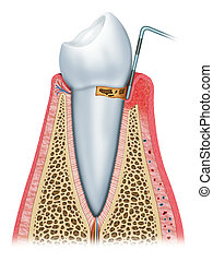temprano, gingivitis, etapa