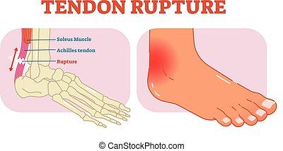 Tendon rupture anatomical example, vector illustration diagram, educational medical scheme.