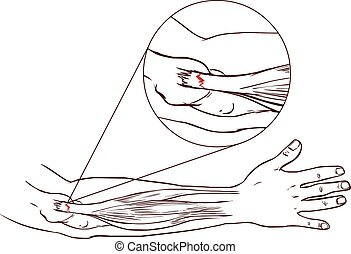 Tennis elbow - tear in the common extensor tendon of the arm...
