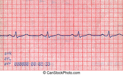 tensão, novo, cardiovascular, diagrama, doppler, conceito, pacient