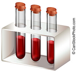 Test tubes with blood samples - Illustration of the test...