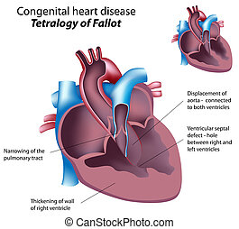 Tetralogy of Fallot, eps8 - Congenital heart disease: ...