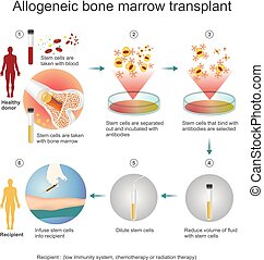 The allogeneic transplant process. - The allogeneic ...
