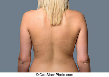 The Back of a Young Blonde Woman
