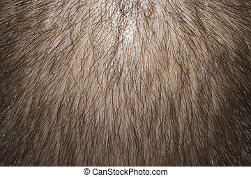 the balding man's head