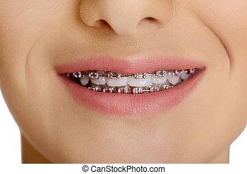 The dental braces. - Portrait of teen girl showing dental...