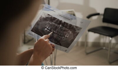 The dentist will show the patient the x-ray of the teeth. A dentist's lycather will show the patient the situation in his teeth. The doctor advises the patient