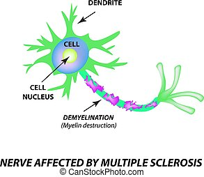 The destruction of the myelin sheath on the axon. Damaged...