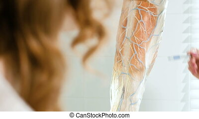 The doctor in the clinic of surgical venous vascular surgery shows on the breadboard model of the leg to the patient 4k