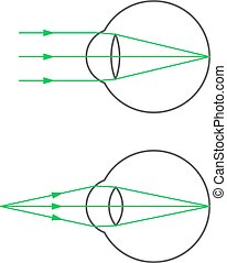 The far and near point of accommodation of an eye with normal vision