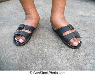 The feet of man with diabetes, dull and swollen. Due to the toxicity of diabetes. Foot swelling caused by drinking water. And the body can not remove water because kidney malfunction.