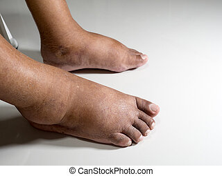 The feet of people with diabetes, dull and swollen. Due to the toxicity of diabetes placed on a white background.