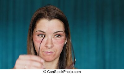 The girl with hematomas on a face. A young woman looks in the mirror. Surprised face. She's wearing sunglasses. Fractional laser. Consequences of the cosmetology procedure.
