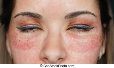 The girl with hematomas on a face. Fractional laser. Consequences of the cosmetology procedure. Face close up. Macro