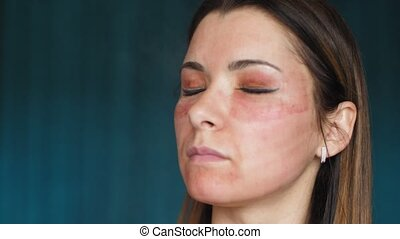 The girl with hematomas on a face. Fractional laser. Consequences of the cosmetology procedure. Woman moisturizing face healing drug. Spray. Slow motion